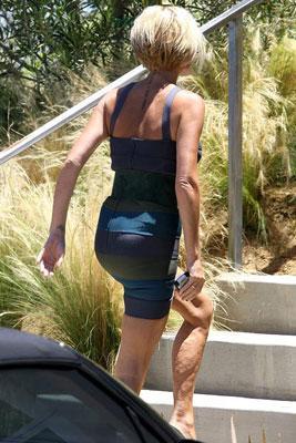 Экс-перчинка Виктория Бекхем знает о целлюлите не понаслышке - ножки у неё стройные, но не безупречные.