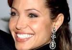 Анджелина Джоли возьмёт в руки скальпель. Фото