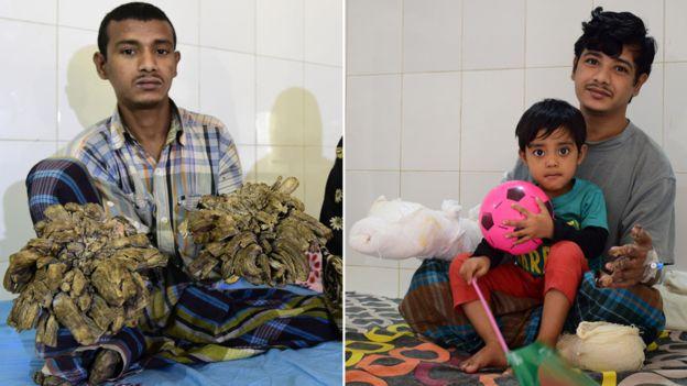 Рік тому Абул Баджандар сильно потерпав від синдрому (на фото - ліворуч), але зараз він може тримати на руках свого сина (праворуч)
