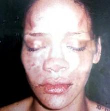 Лицо Рианны после избиения