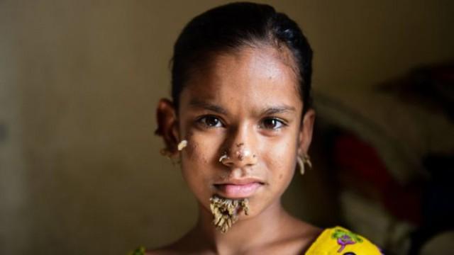 Лікарі сподіваються, що 10-річна Сахана Хатун матиме м'яку форму синдрому