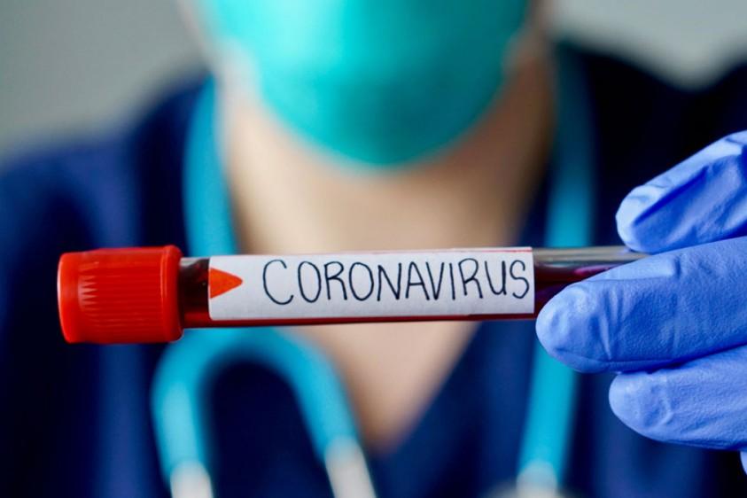 Украина выпустила первые 200 тысяч ПЦР-тестов для диагностики коронавируса